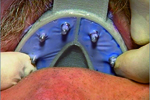 Miratray Implant - Medium Lower